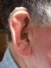 Réseau de soins d'audioprothésistes