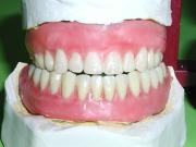 Une mutuelle pour les dents !